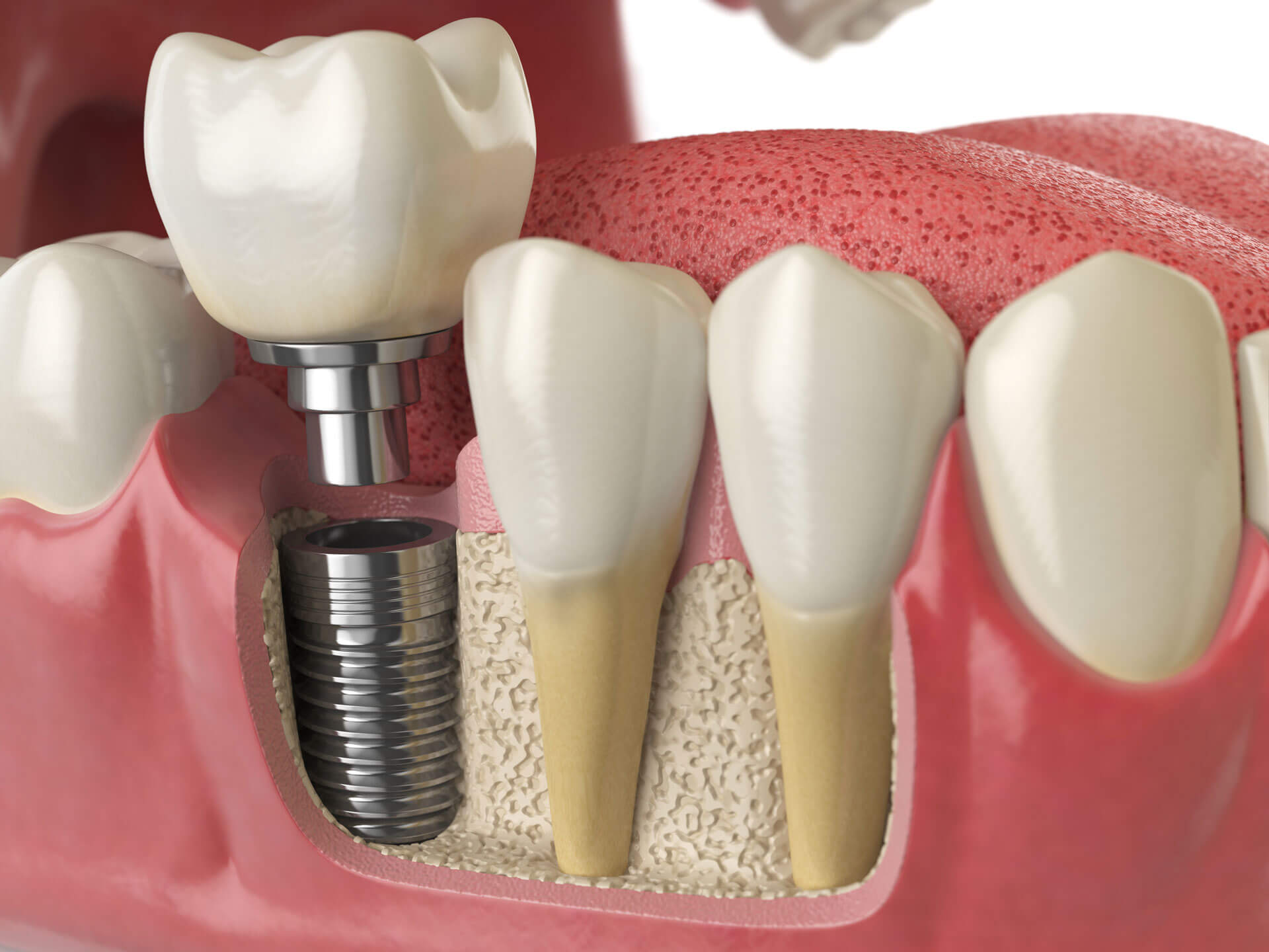 Implant dentaire : Comment l'implant est devenu populaire ?